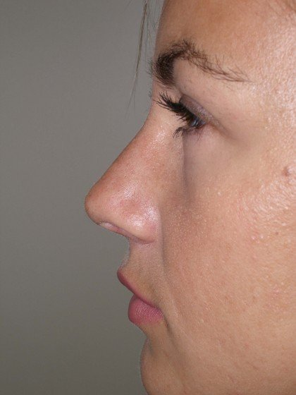 Rhinoplasty Before & After Patient #4146