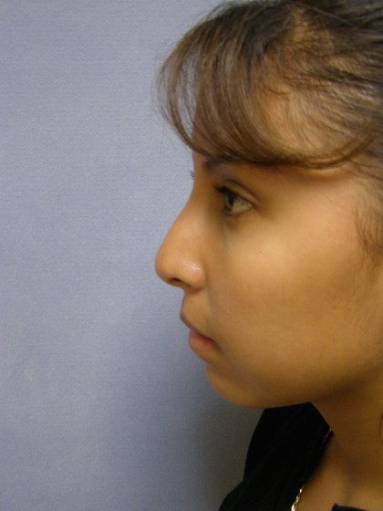 Rhinoplasty Before & After Patient #4165