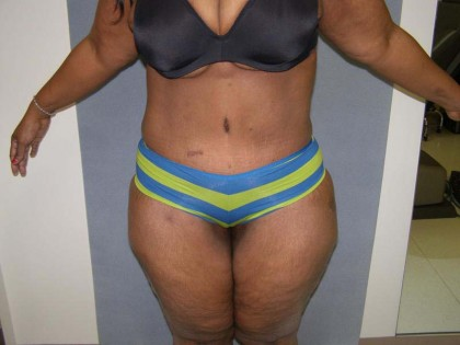 Tummy Tuck Before & After Patient #4037