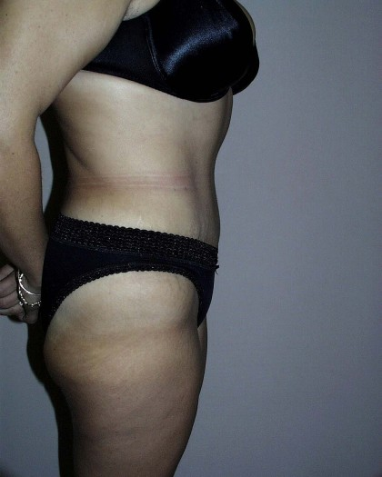 Tummy Tuck Before & After Patient #4044