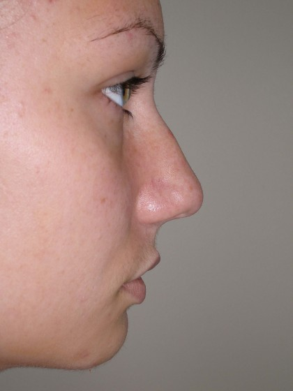 Rhinoplasty Before & After Patient #4180