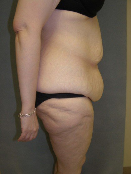 Tummy Tuck Before & After Patient #4054
