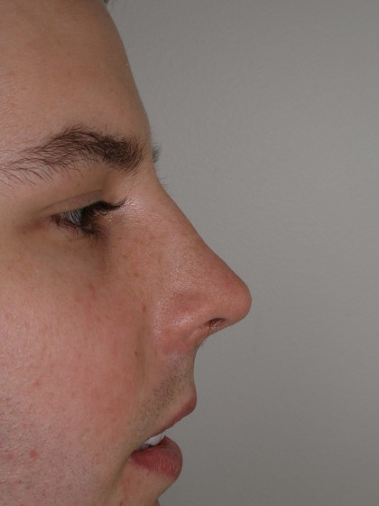 Rhinoplasty Before & After Patient #4195