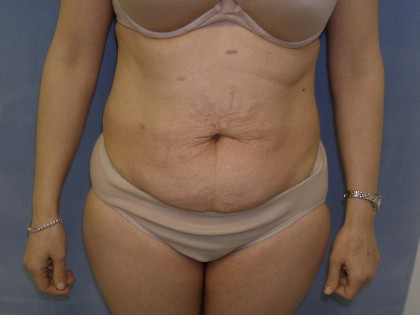 Tummy Tuck Before & After Patient #4069