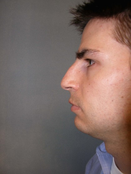 Rhinoplasty Before & After Patient #4227