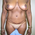 Breast Lift Before & After Patient #4102