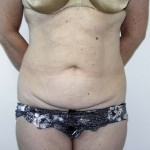 Tummy Tuck Before & After Patient #4112