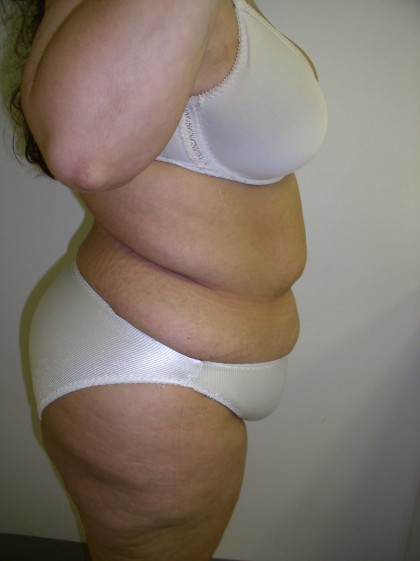 Tummy Tuck Before & After Patient #4117