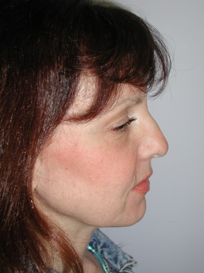 Facelift Before & After Patient #4991