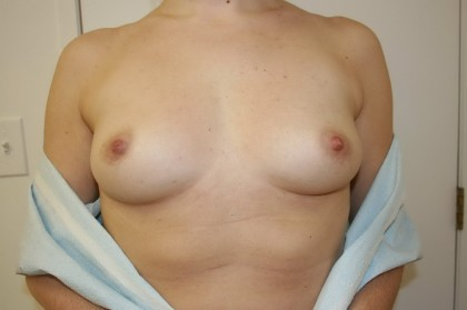 Breast Augmentation Before & After Patient #4003