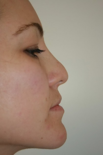 Rhinoplasty Before & After Patient #4998