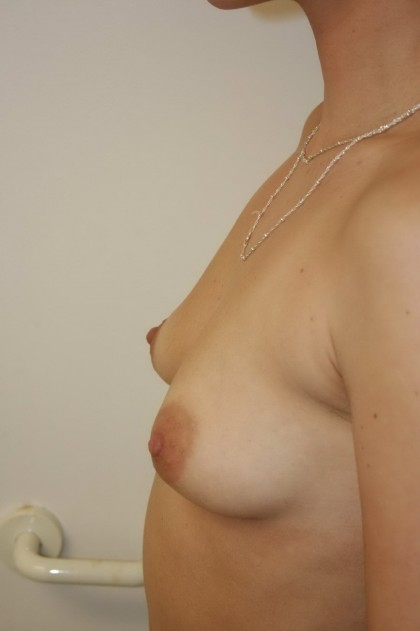 Breast Augmentation Before & After Patient #5005