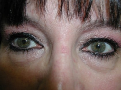 Eyelid Surgery Before & After Patient #4960