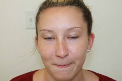 Rhinoplasty Before & After Patient #4975