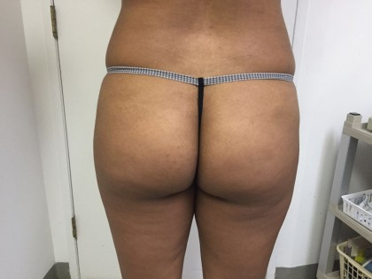 Liposuction Before & After Patient #4931