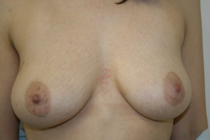 Breast Reconstruction Before & After Patient #4941