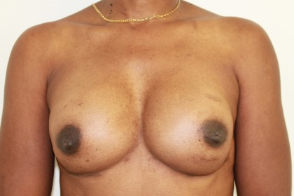 Breast Augmentation Before & After Patient #4951
