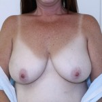 Breast Reconstruction Before & After Patient #4938