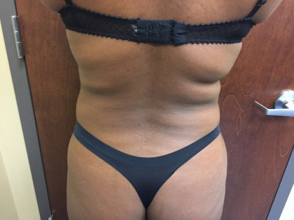Brazilian Butt Lift Before & After Patient #4944