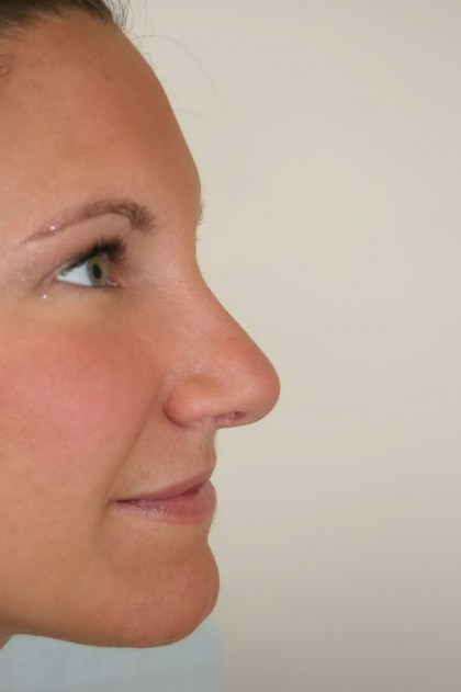 Rhinoplasty Before & After Patient #3994