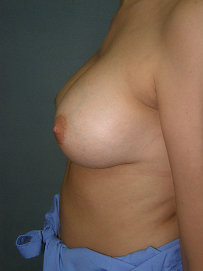 Breast Augmentation Before & After Patient #5030