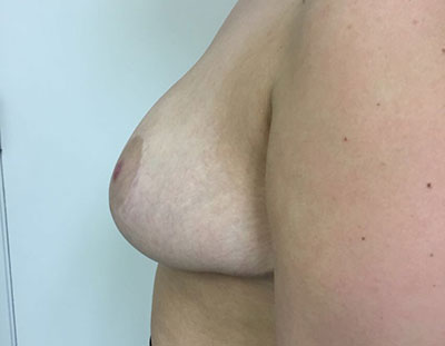 Breast Reduction Before & After Patient #5025