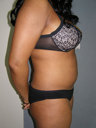 Liposuction Before & After Patient #5018
