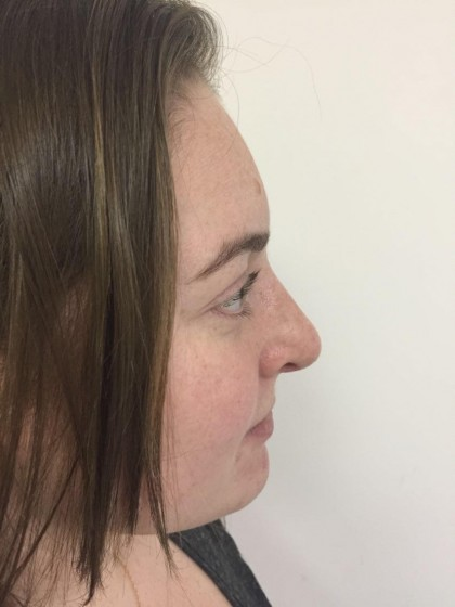 Rhinoplasty Before & After Patient #5012