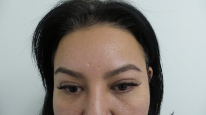 Facelift Before & After Patient #5052
