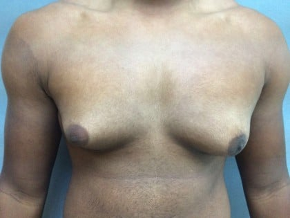 Gynecomastia Before & After Patient #5044