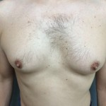 Gynecomastia Before & After Patient #5047
