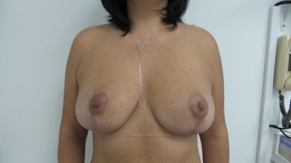 Liposuction Before & After Patient #5055