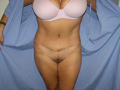 Tummy Tuck Before & After Patient #5037