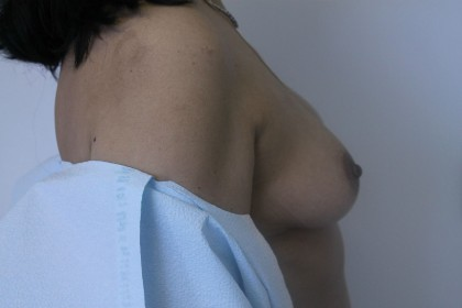 Breast Augmentation Before & After Patient #5074