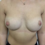 Breast Augmentation Before & After Patient #5069