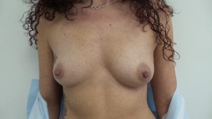 Breast Augmentation Before & After Patient #5234