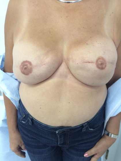 Breast Reconstruction Before & After Patient #5242