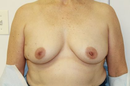 Breast Reconstruction Before & After Patient #5239
