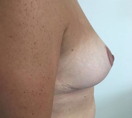 Breast Lift Before & After Patient #5248