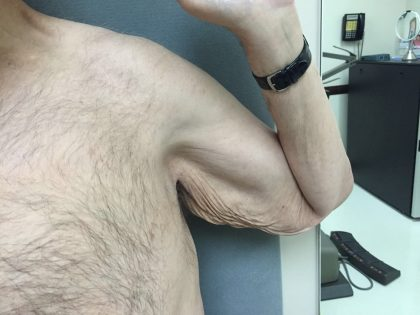 Arm Lift Before & After Patient #5253