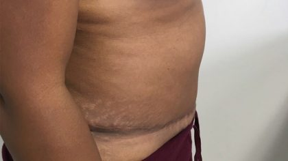 Tummy Tuck Before & After Patient #5358