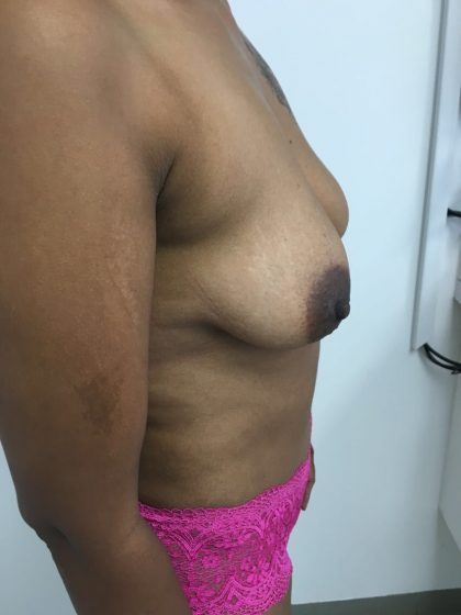 Tummy Tuck Before & After Patient #5363