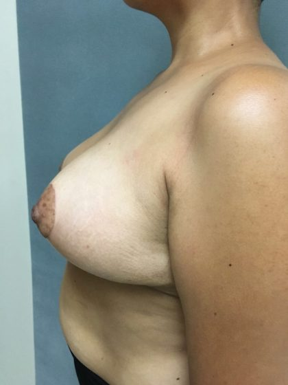 Breast Reduction Before & After Patient #5368