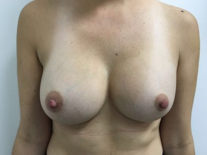 Breast Augmentation Before & After Patient #5374