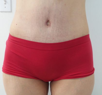 Tummy Tuck Before & After Patient #5379