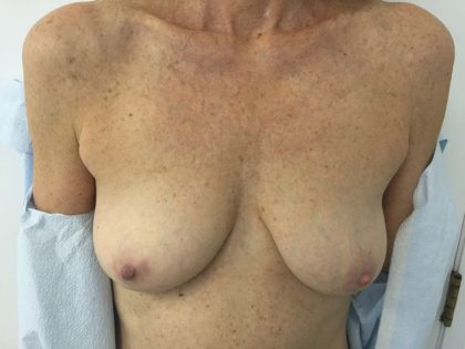 Breast Augmentation Before & After Patient #5434