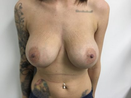 Breast Augmentation Before & After Patient #5440