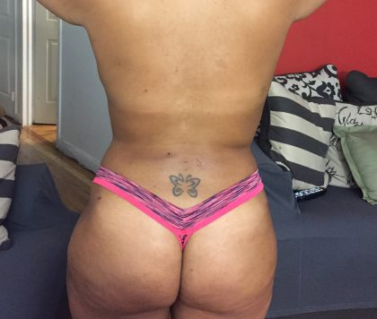 Brazilian Butt Lift Before & After Patient #5437