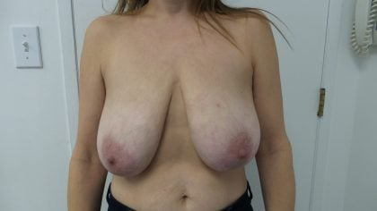 Breast Reduction Before & After Patient #5470