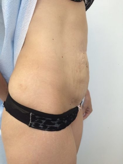 Tummy Tuck Before & After Patient #5596